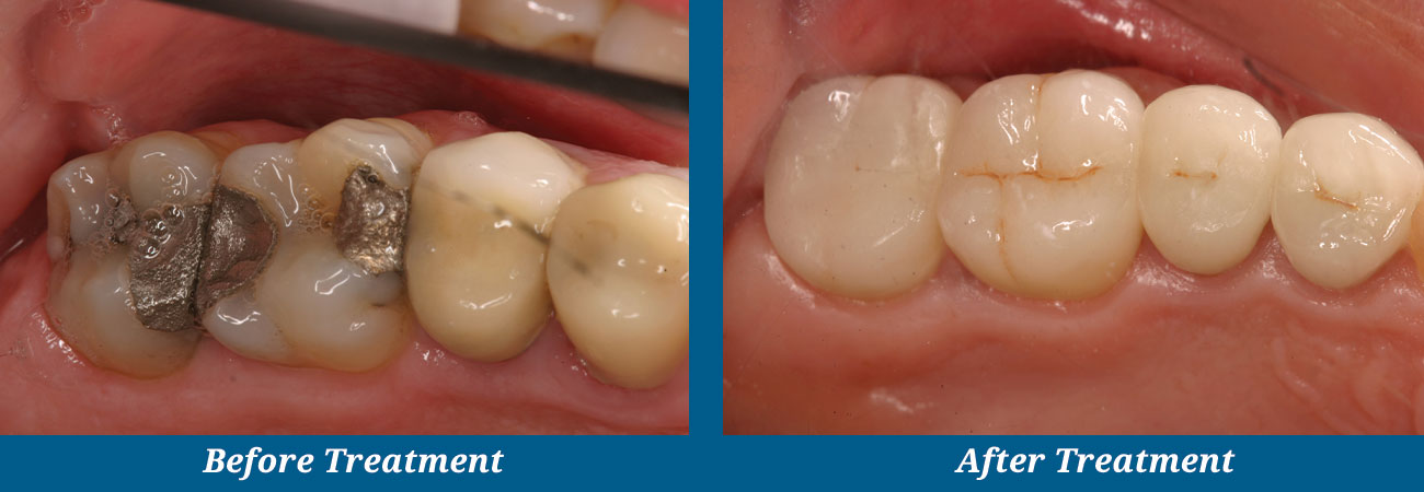 rockplazadental-before-after-22