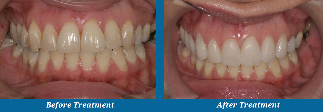 rockplazadental-before-after-26veneers